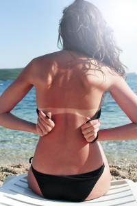 Severely burned skin, dark red tanned body